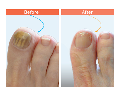 before and after tonail fungus