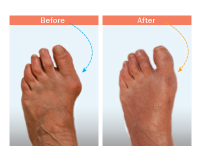 before and after bunion surgery 4