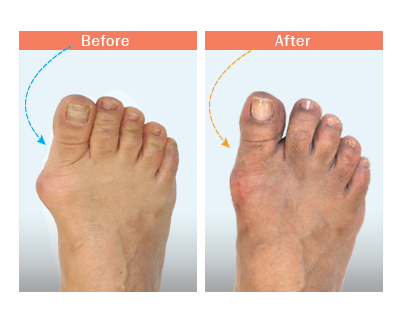 before and after bunion surgery 2