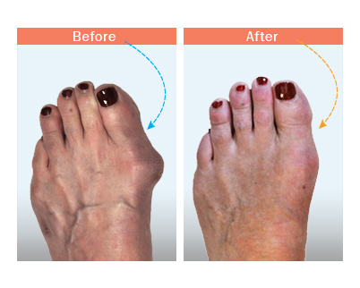 before and after bunion surgery 3
