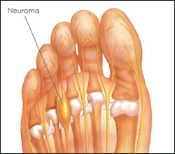 New York City Neuroma